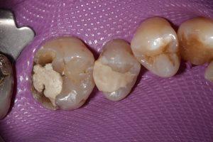 Fractured molar and premolar