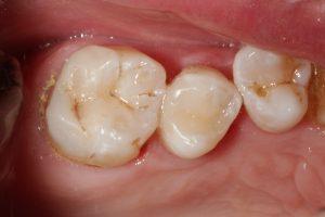 Restoration of fractured molar and premolar